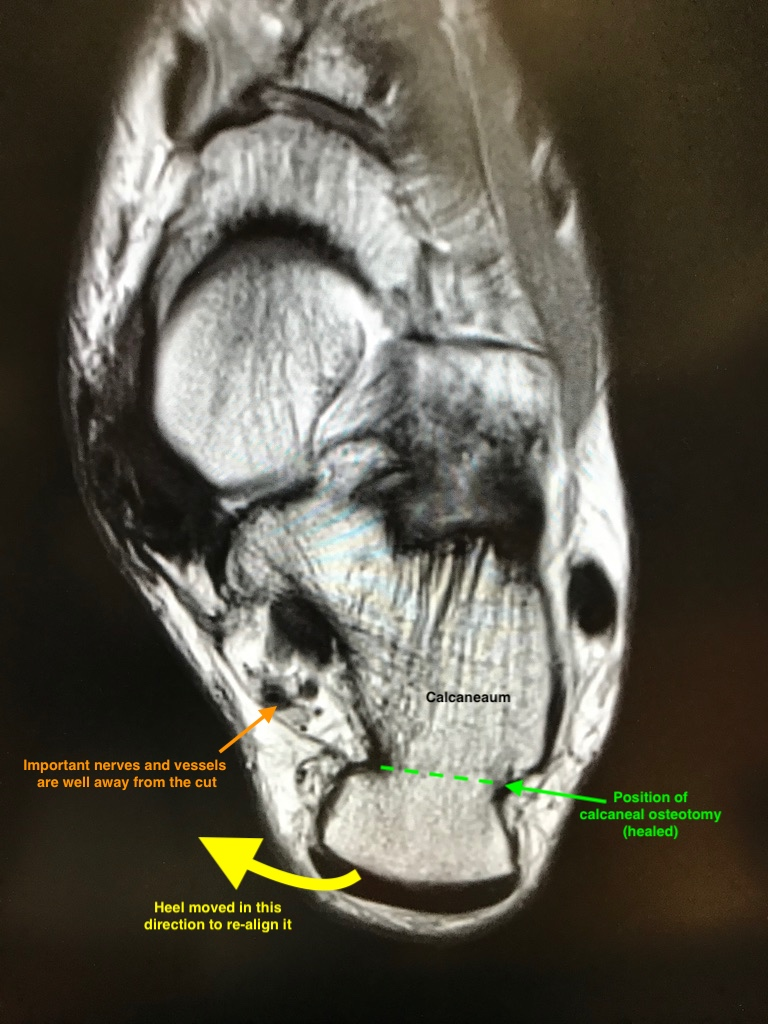 Minimally Invasive Calcaneal Osteotomy - Here is an MRI of a minimally invasive calcaneal osteotomy that has healed. The scan image has been annotated to show the site of the cut and the direction of re-alignment. The position of the important tibial nerve and blood vessels has also been marked to show that they are well clear of the site of the keyhole surgery. The risk of kind of nerve injury is less than 1:500 in Mr Redfern's practice.