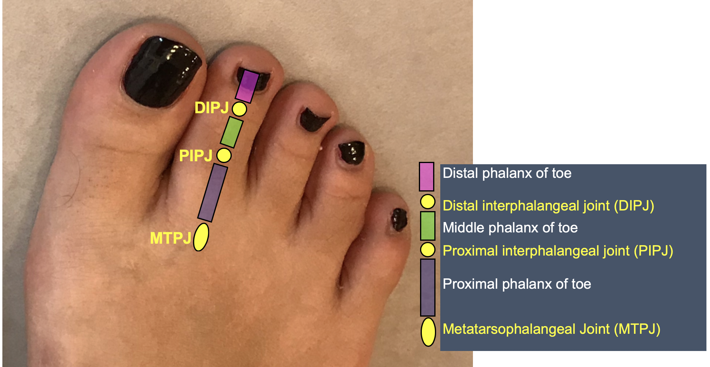 Key to toe terminology:  This diagram explains the nomenclature used in describing the different parts of the lesser toes.
