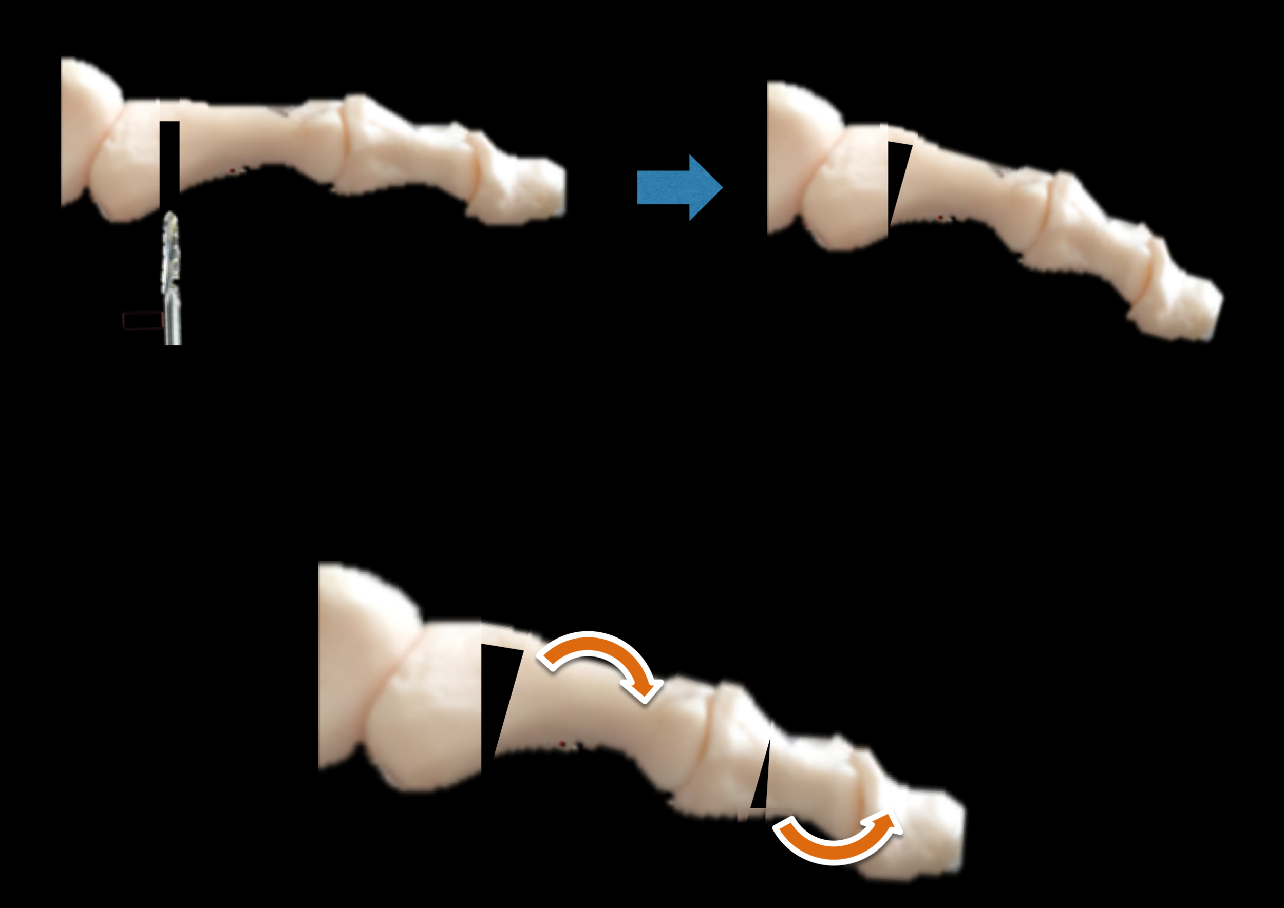 Minimally invasive surgery - This diagram shows how a tiny burr is used to cut a slot in the bone(s) of the toe and the toe then re-aligned by bending the remaining hinge of bone. This can be repeated in different bones of the same to correct the alignment in all 3 planes without resorting to permanently stiffening (fusing) the joints.