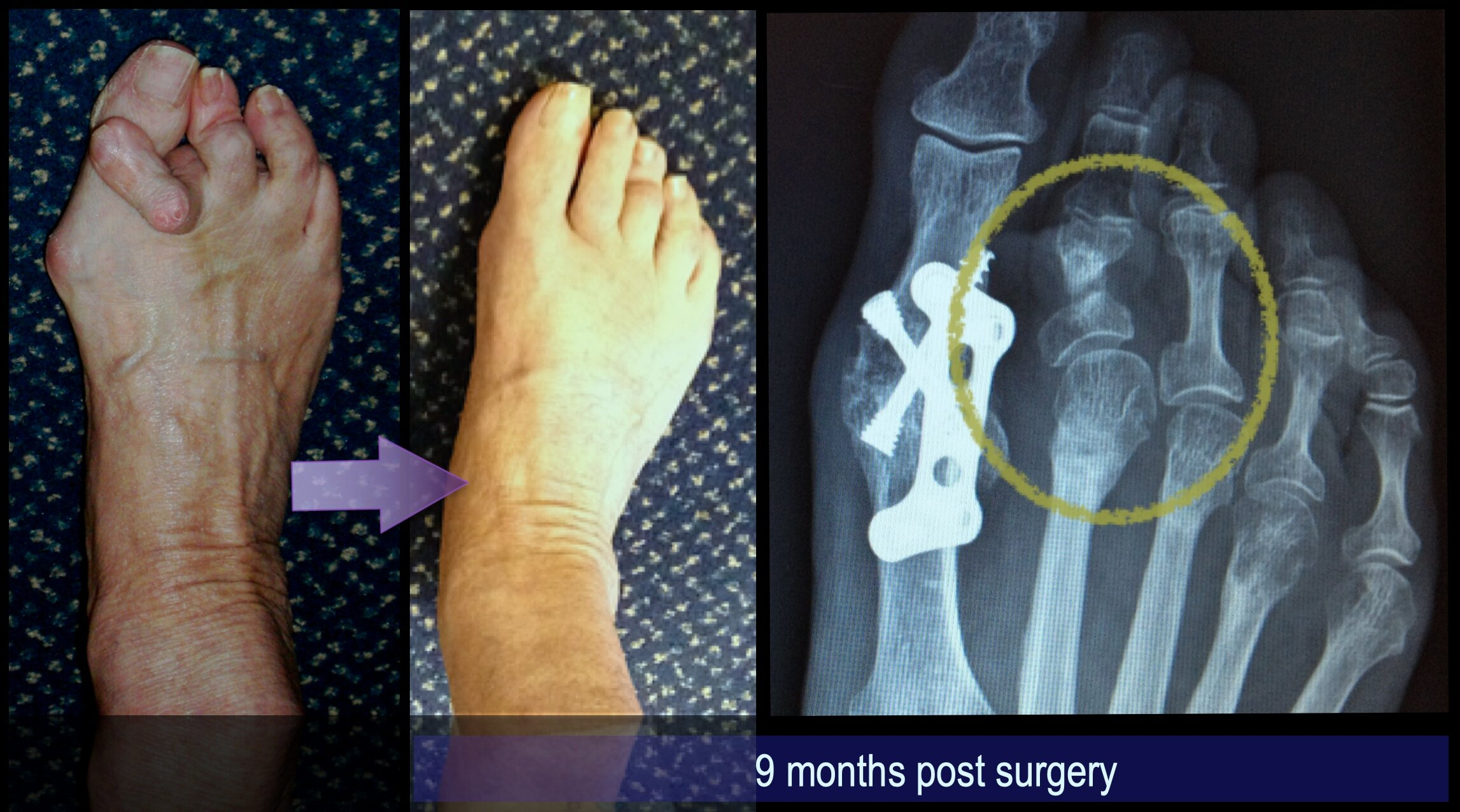 An example of Mr Redfern's surgery. This severe deformity of the 2nd toe was corrected using minimally invasive surgery in combination with surgery to correct an arthritic bunion.