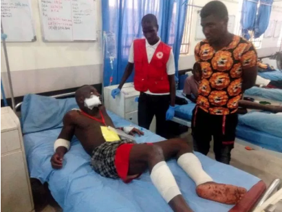 Victim receives treatment. Source  https://www.zukus.net/suicide-bombers-kill-at-least-30-in-northeastern-nigeria/