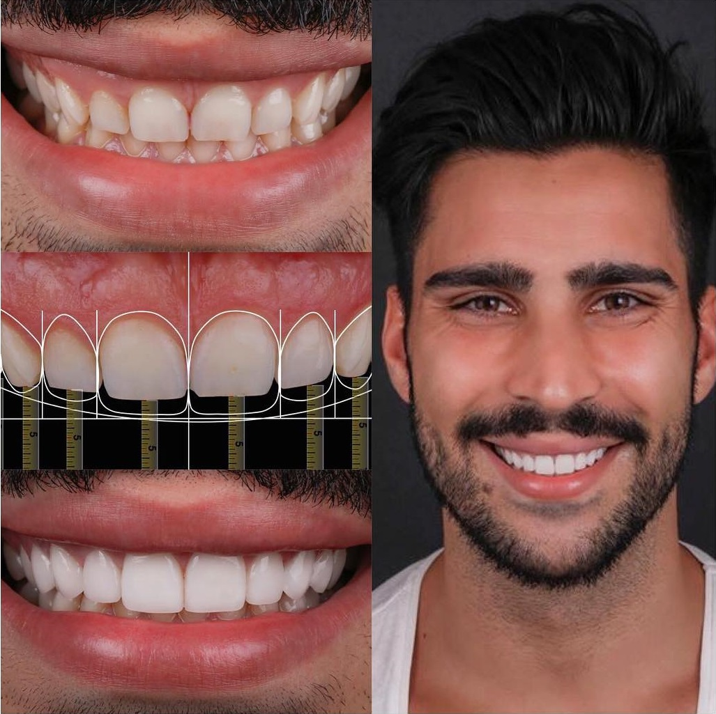 digital-smile-design.jpg