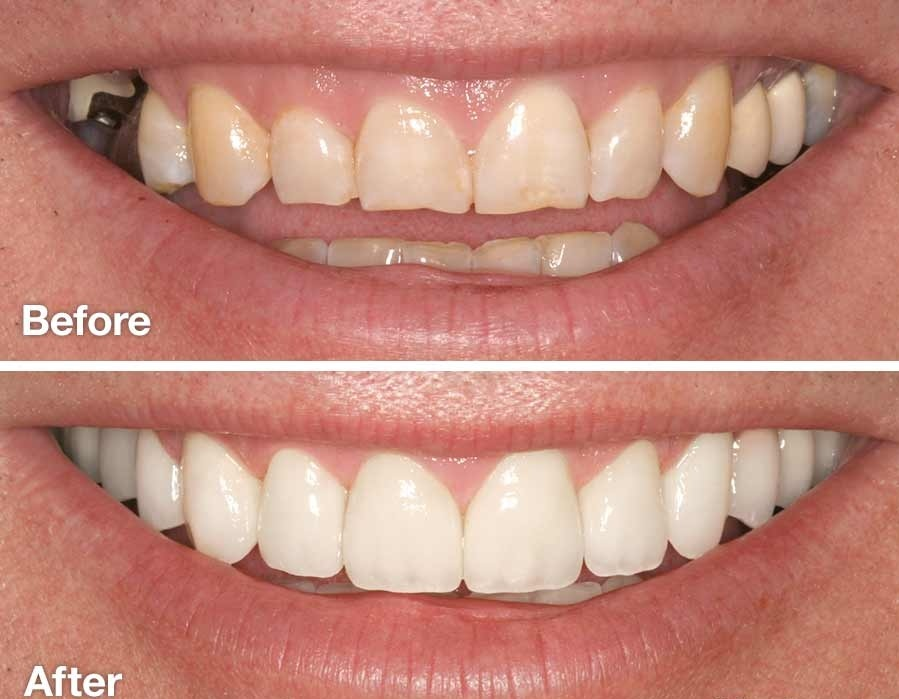 smile-makeover-before-and-after.jpg