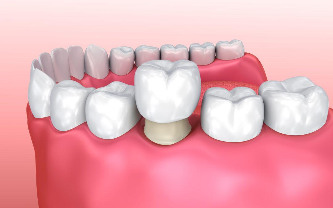 dental-crowns-1080x675.jpg