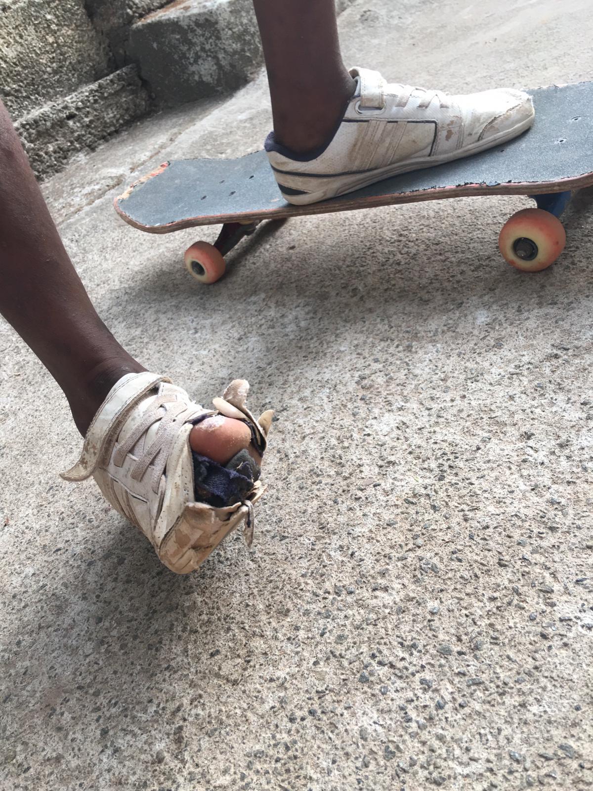 Philosophie - SISP ist eine non-profit Organisation, die im Jahr 1997 von zwei Belgiern gegründet wurde.Sie bietet den armen Kindern der Region eine wahre Chance auf ein besseres Leben für ihre Familie durch eine Schulausbildung.Um die Anwesenheit der Schüler zu fördern, bietet ihnen SISP kostenlosen Skateboard-Unterricht, an dem die Kinder teilnehmen können, wenn sie regelmäßig im Unterricht erscheinen.