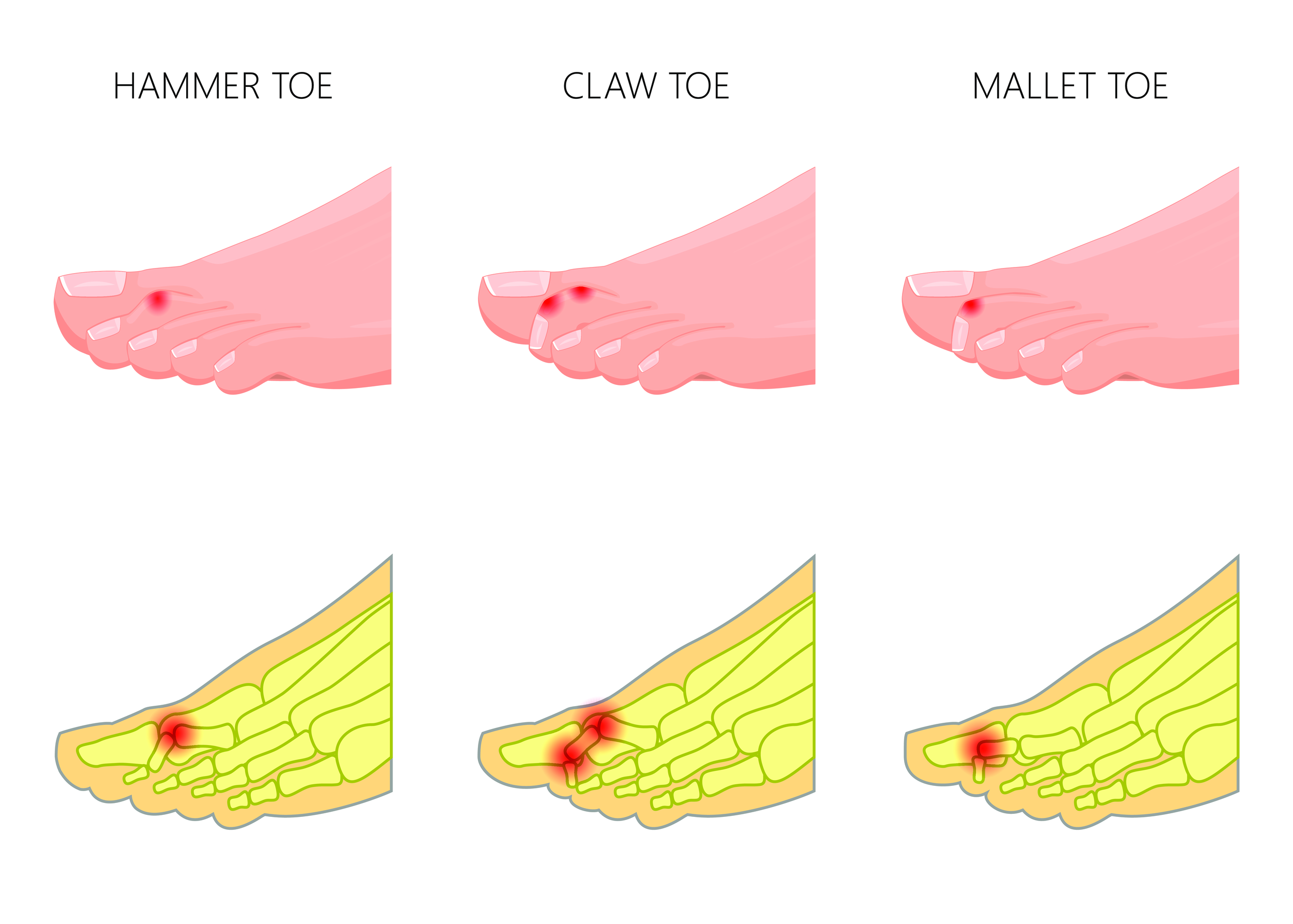 fairfax foot doctor treats hammertoe pain, cosmetic toe surgery