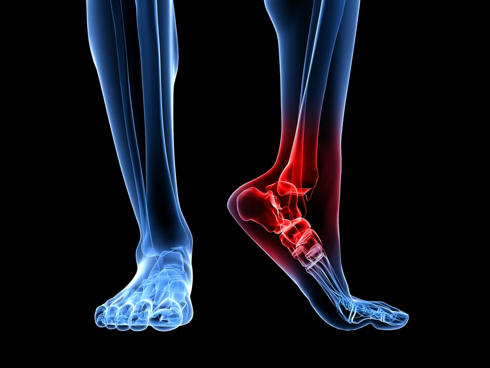 foot and ankle surgery in fairfax va