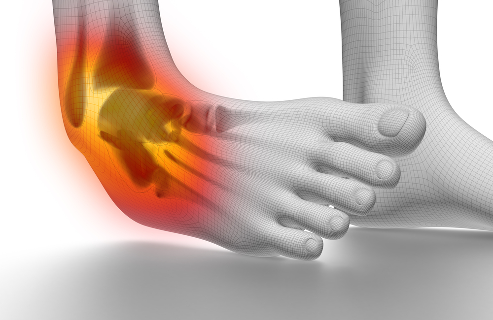 fairfax va podiatrists treat chronic ankle sprains