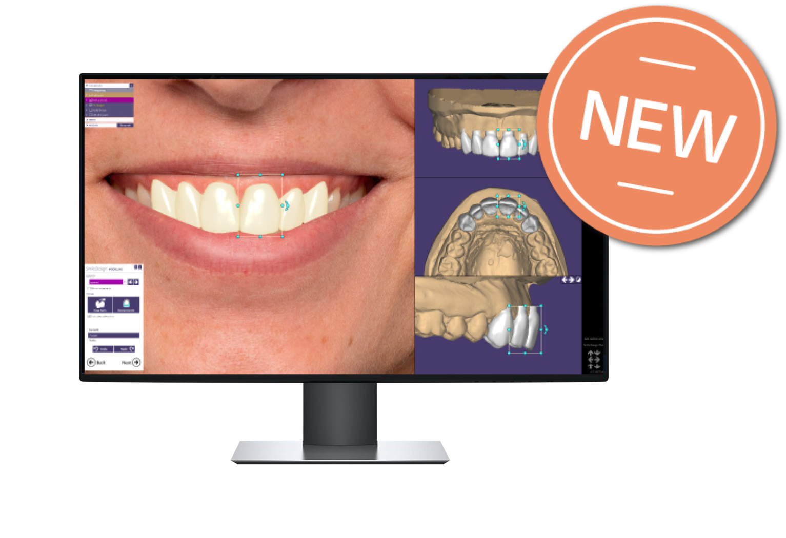 Our Products — Monolithic Dental
