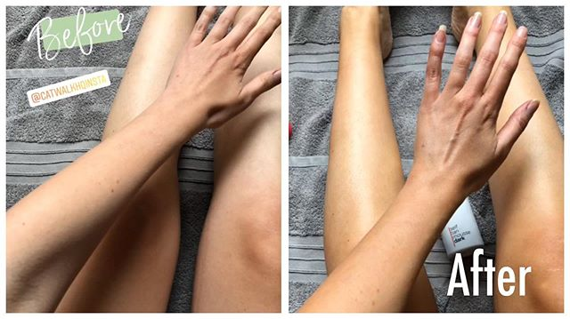 Love this before & after from @thebeautykemple 💕 #catwalkhq #tan #naturalglow #mousse #crueltyfree