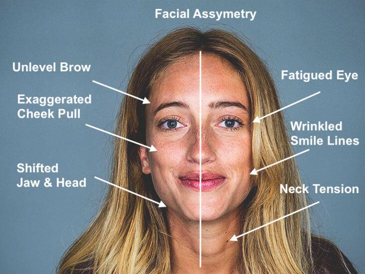 Cranial Facial Tmj Dr Moses