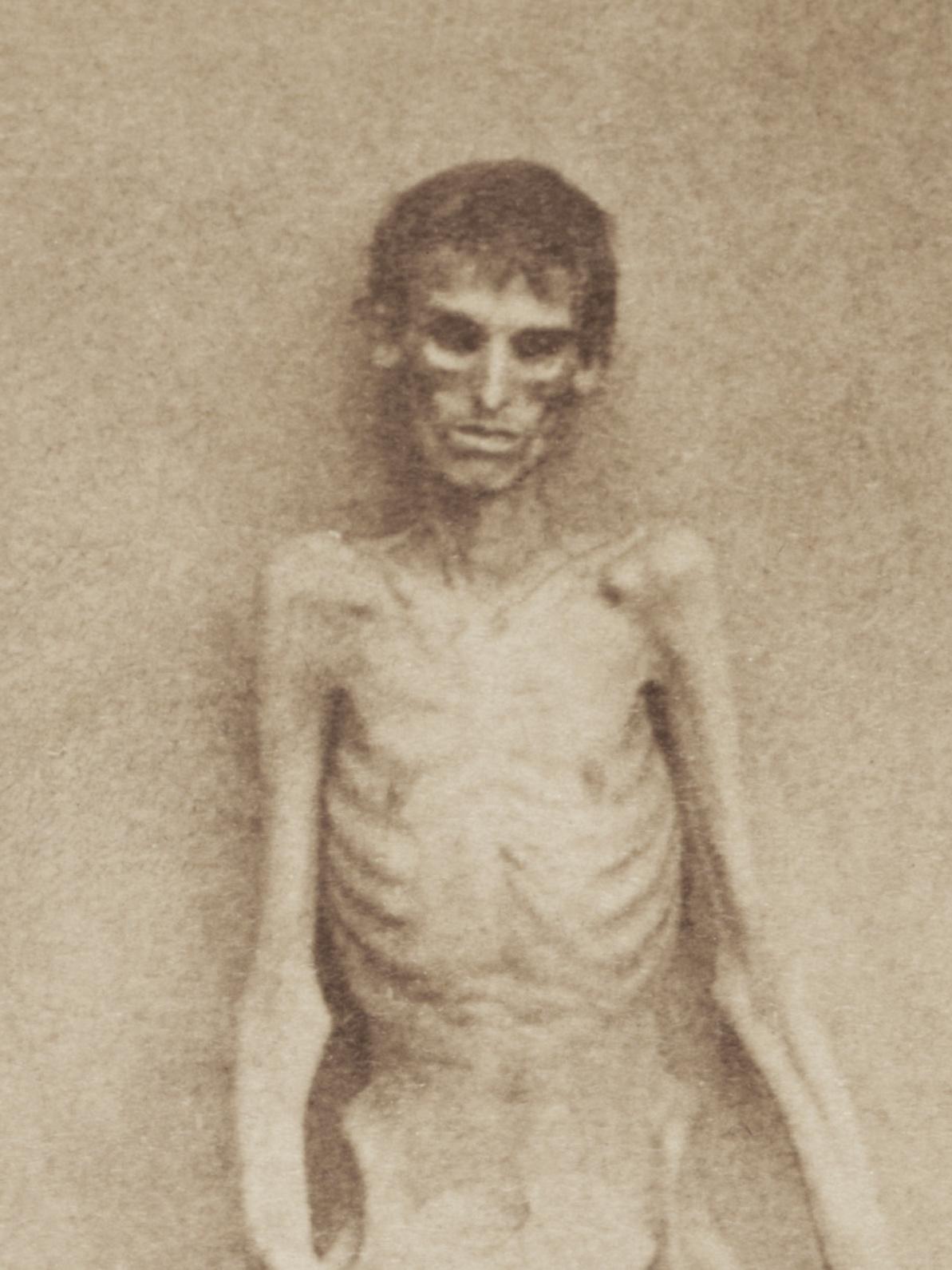 Union soldier Andersonville survivor