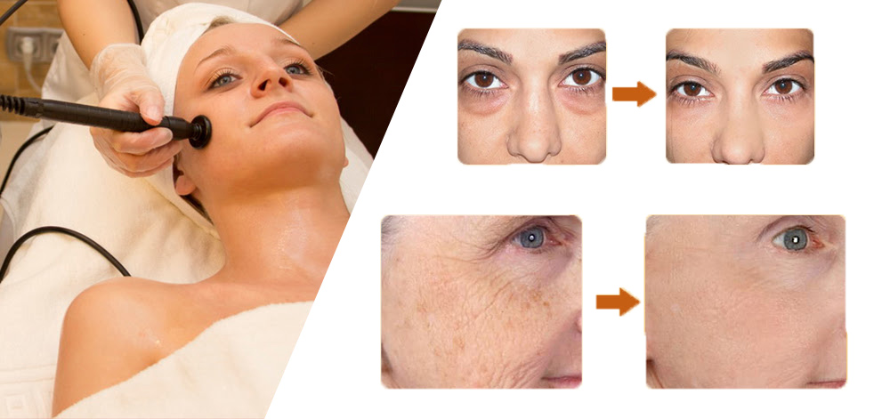 RF skin tightening.jpg