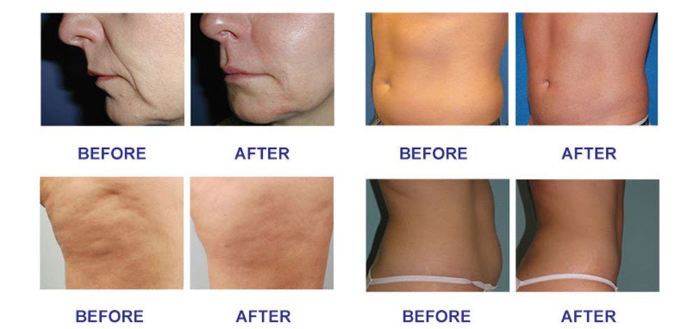 rf skin tightening before and after.jpg
