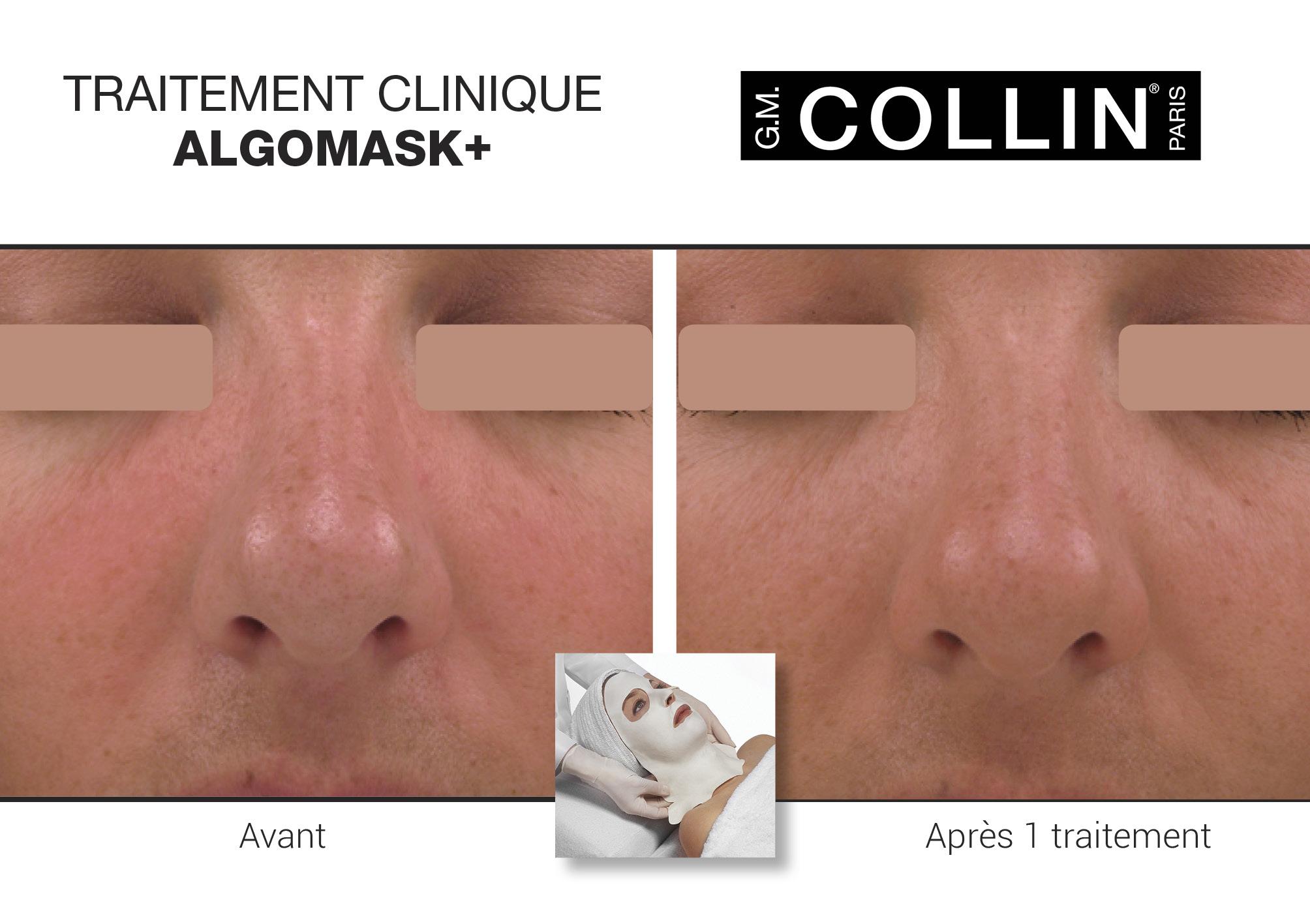 Avant&Apres-SoinsCliniques-4.jpg