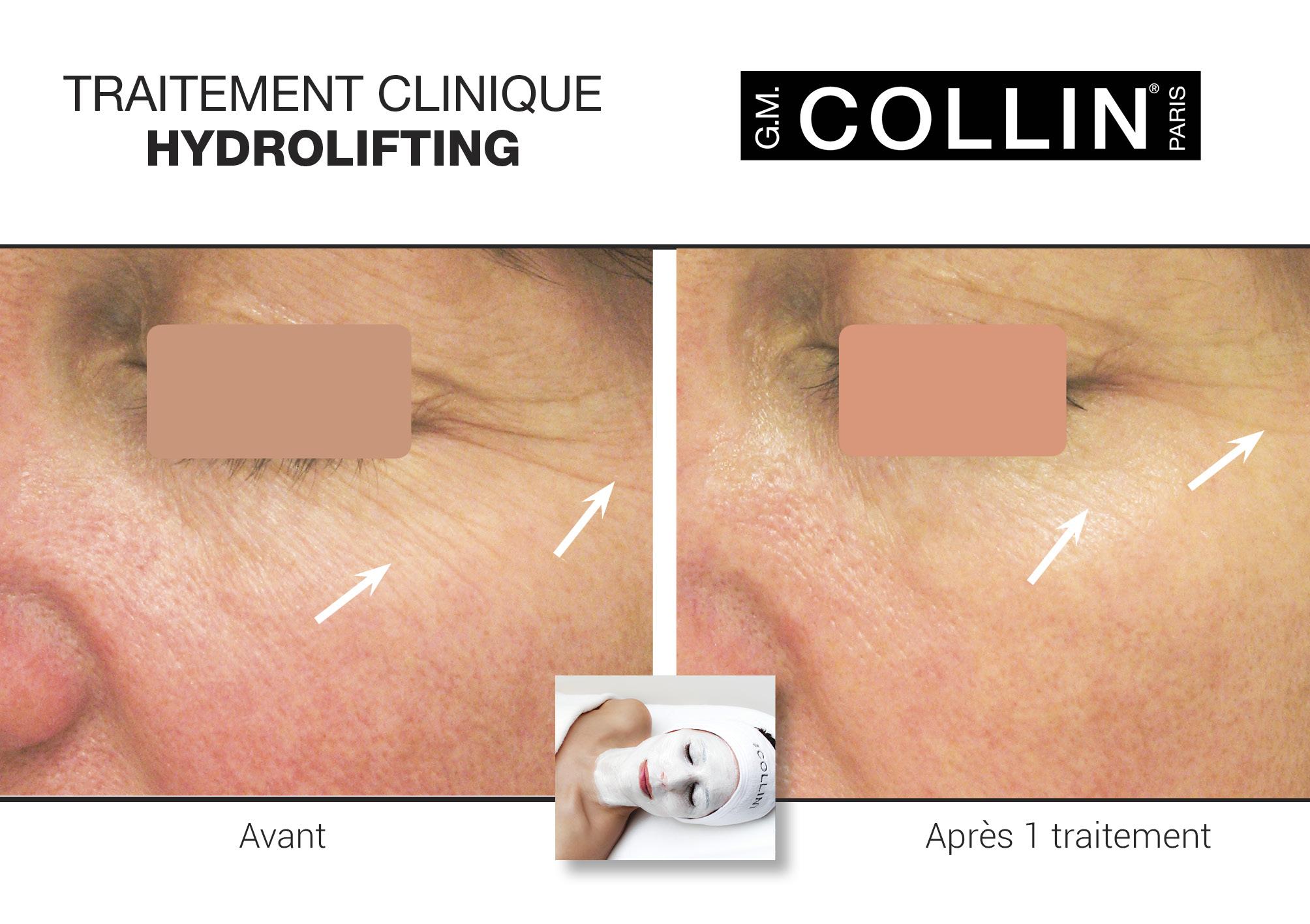 Avant&Apres-SoinsCliniques-5.jpg