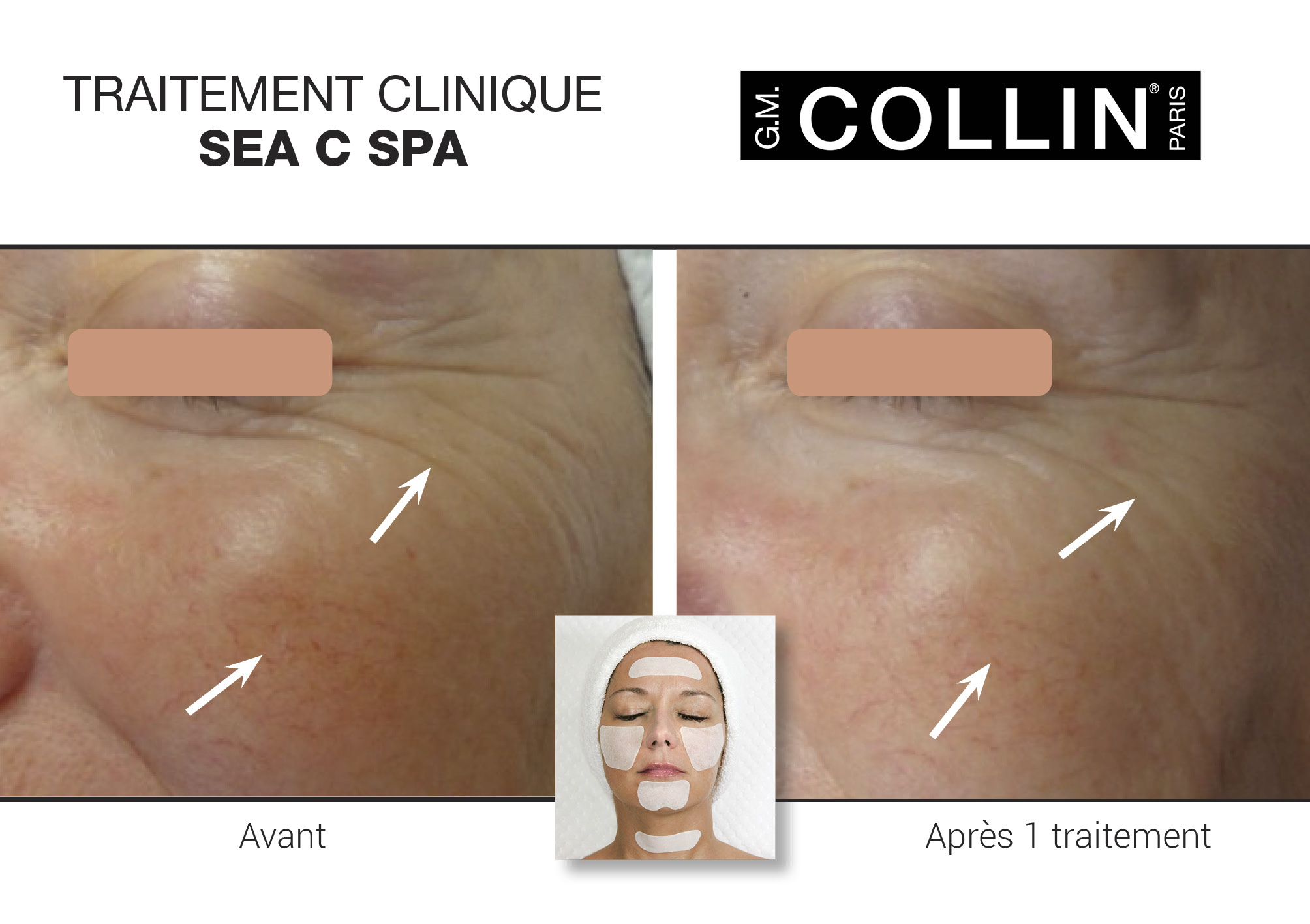 Avant&Apres-SoinsCliniques-7.jpg
