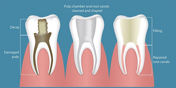 root-canal-example.jpg