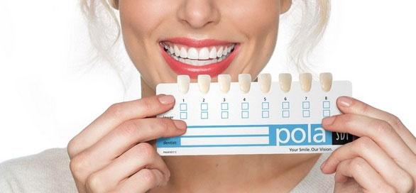 teeth-whitening-Vancouver-cost.jpg
