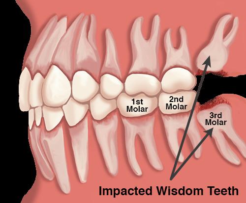 Wisdom-Teeth.png