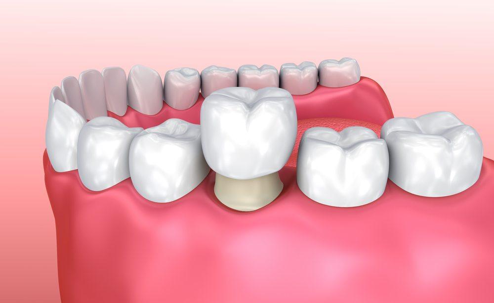 dental-crown-process (1).jpg