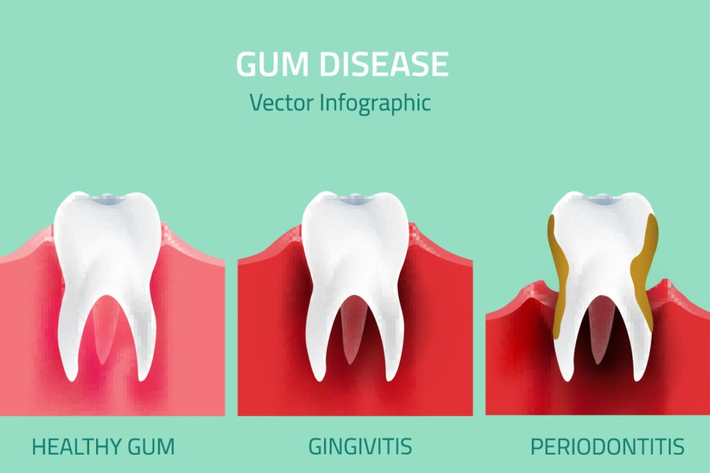 gum-disease-1080x675.jpg