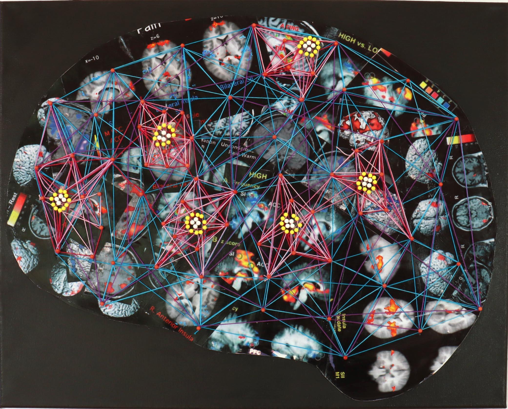 Pain Brain
