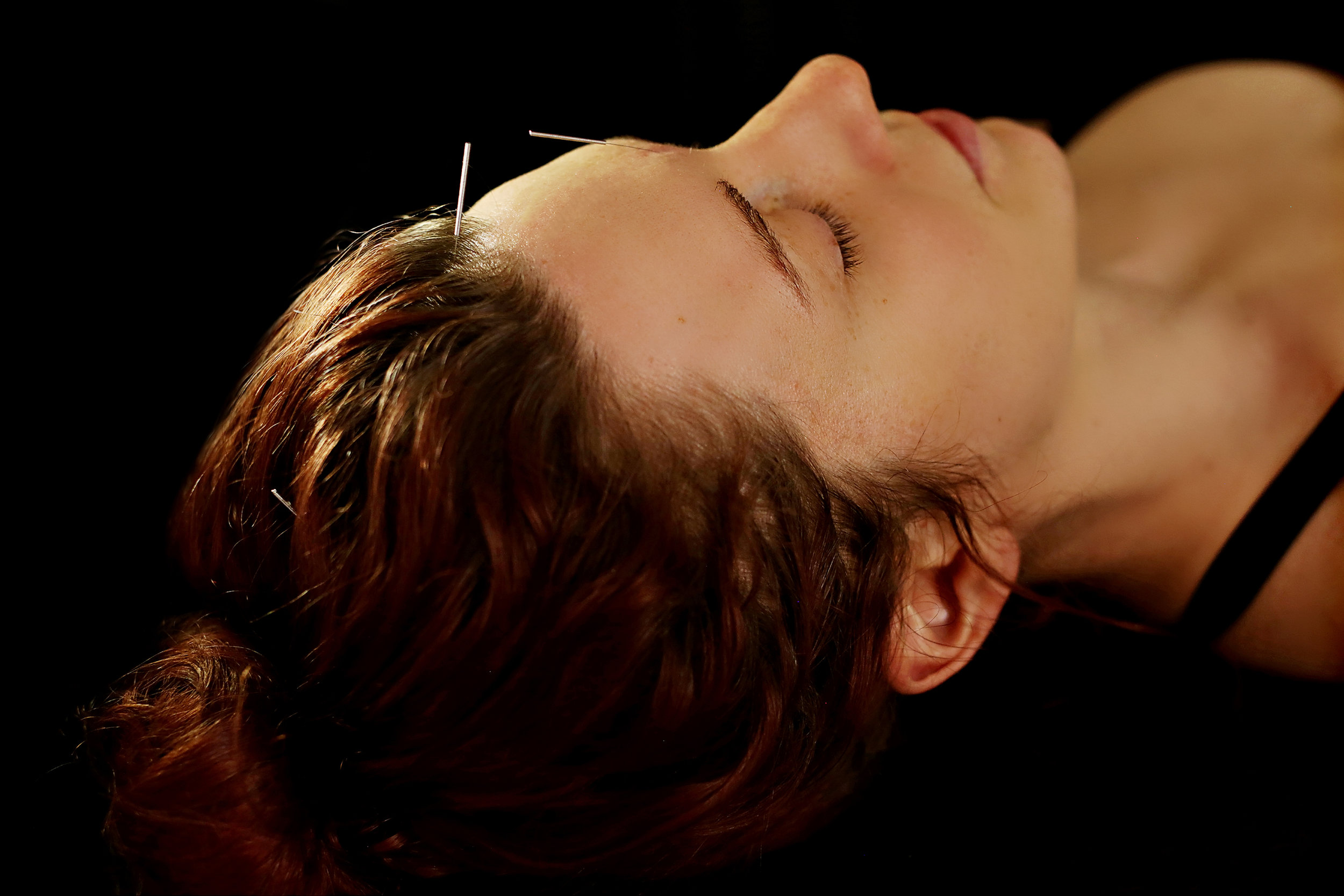 Acupuncture:  A practice of inserting fine needles through the skin at specific points to alleviate pain and  treat various physical, mental, and emotional conditions.   Dry Needling:  Also know as myofascial trigger point acupuncture. It is the practice of inserting fine needles through the skin into trigger points to help relieve pain and release muscular adhesions.
