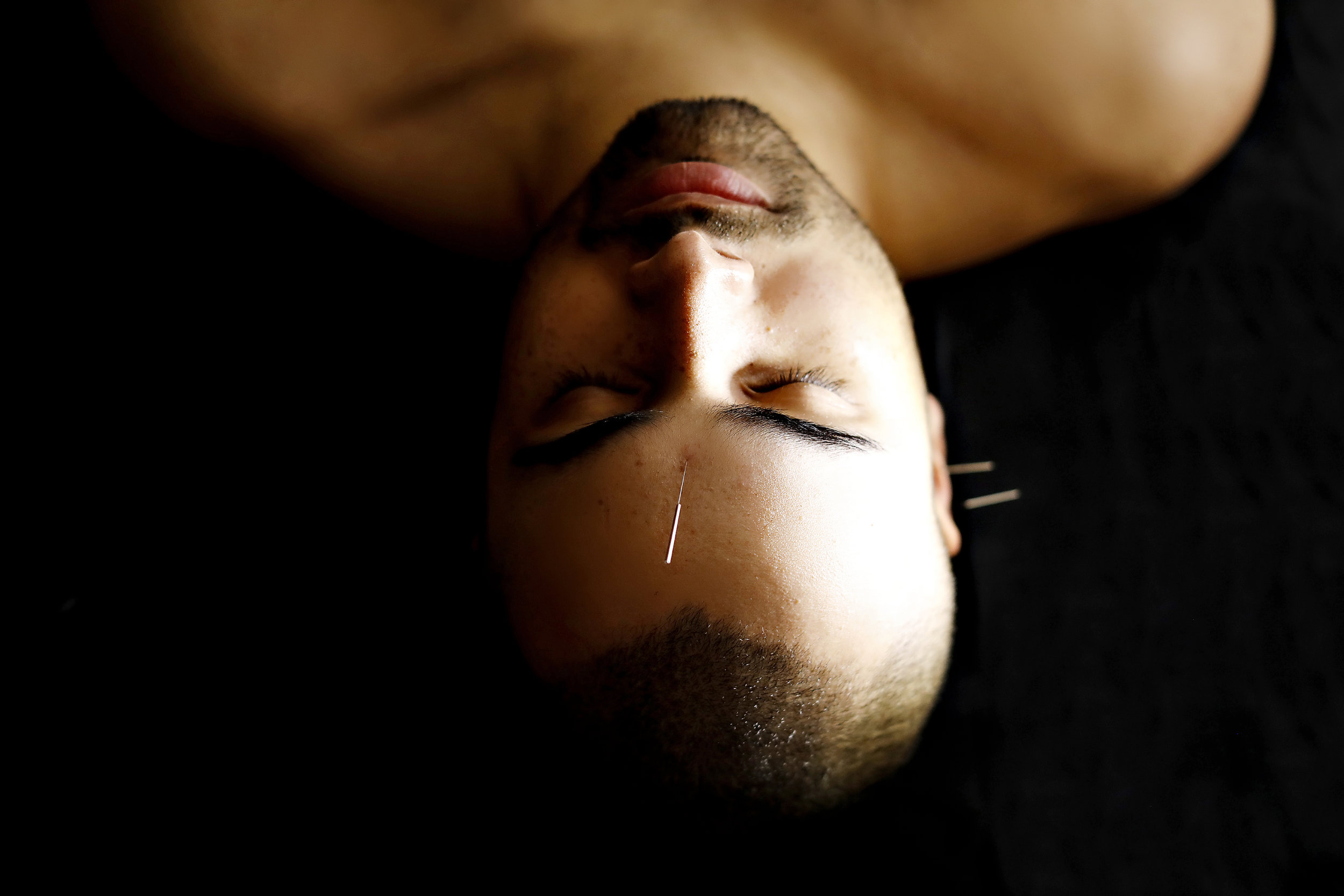 Optimizing the function of the nervous system through acupuncture and TCM.