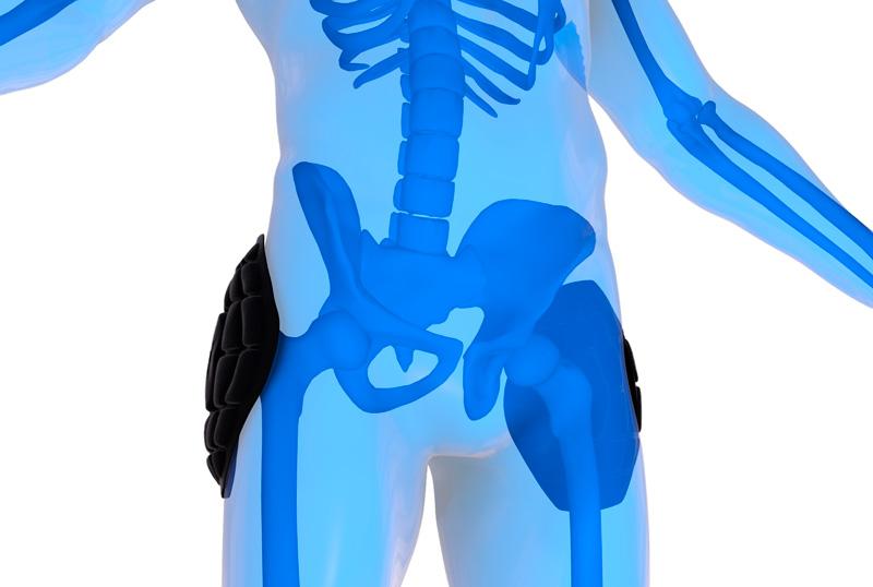 Auxilia na prevenção de lesões - A tecnologia Extreme Contact possui alta densidade capaz de neutralizar grandes impactos sofridos na cabeça do osso femoral. Superfície com diferentes espessuras e formatos, estrategicamente distribuídas para dissipar impactos e prevenir lesões.