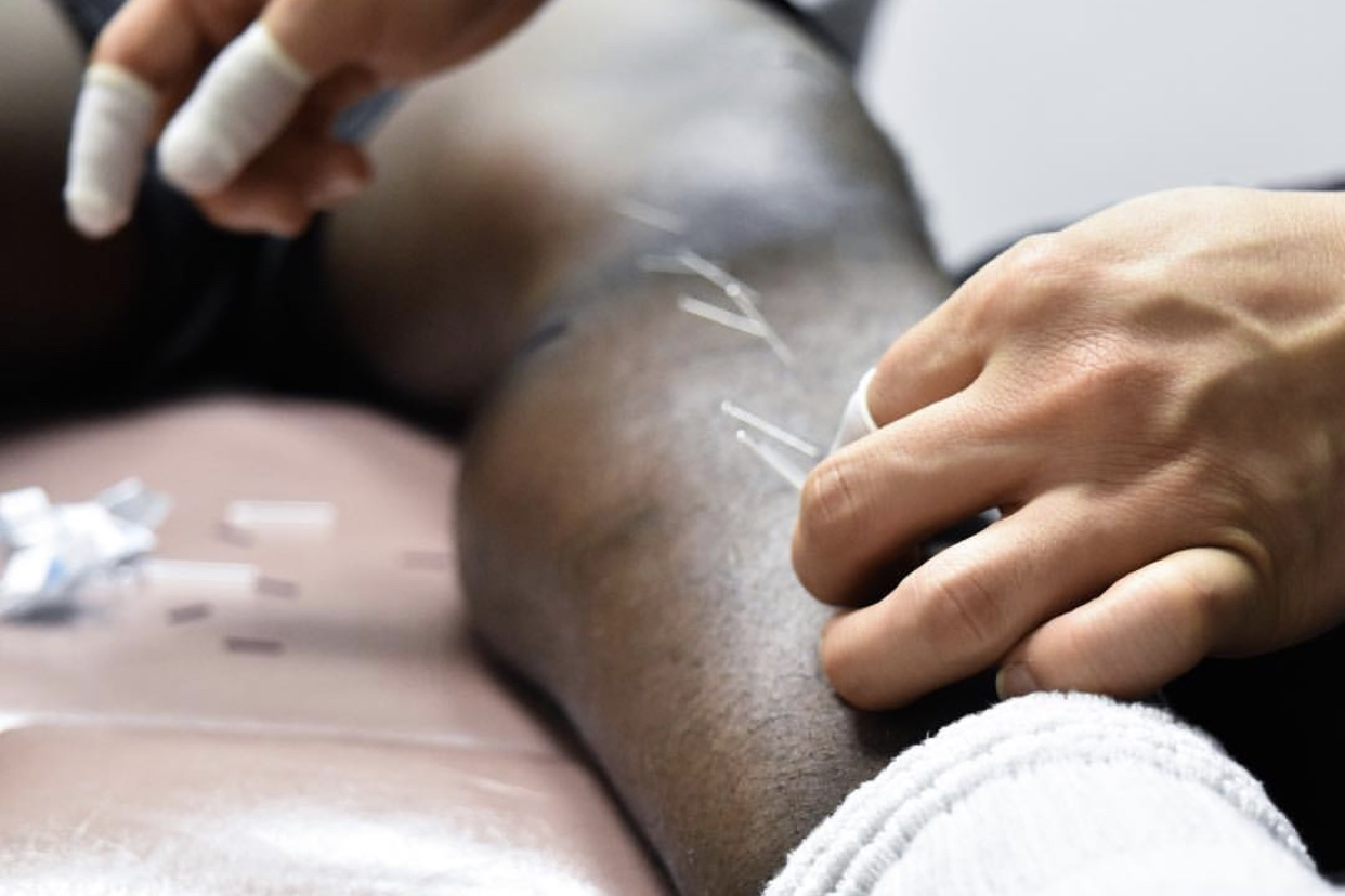 Dry Needling - The use of hands to break soft tissue adhesion, scar tissue, and altered connective tissue to increase blood flow, increase range of motion, promote healing, and increase cellular activity in the region.