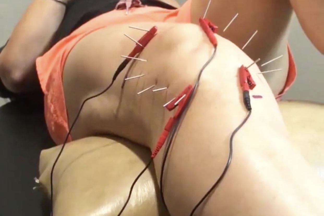 Electro-Acupunture - Electroacupuncture uses the same principles and pressure points as the traditional needling method, but it adds a microcurrent to the needle. This method enhances the function of that specific point and activates different types of regeneration in the body.