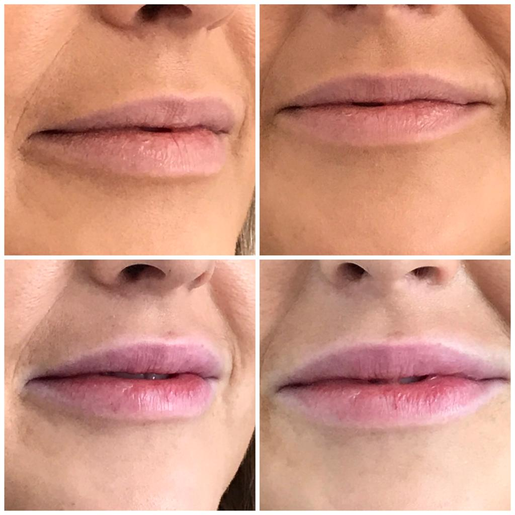 DERMALFILLERS_JUVEDERMVYCROSS_Before_After_Lips.jpeg