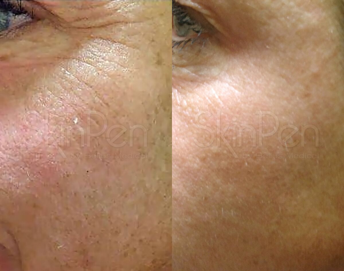 Sample treatment - micro needling using SkinPen