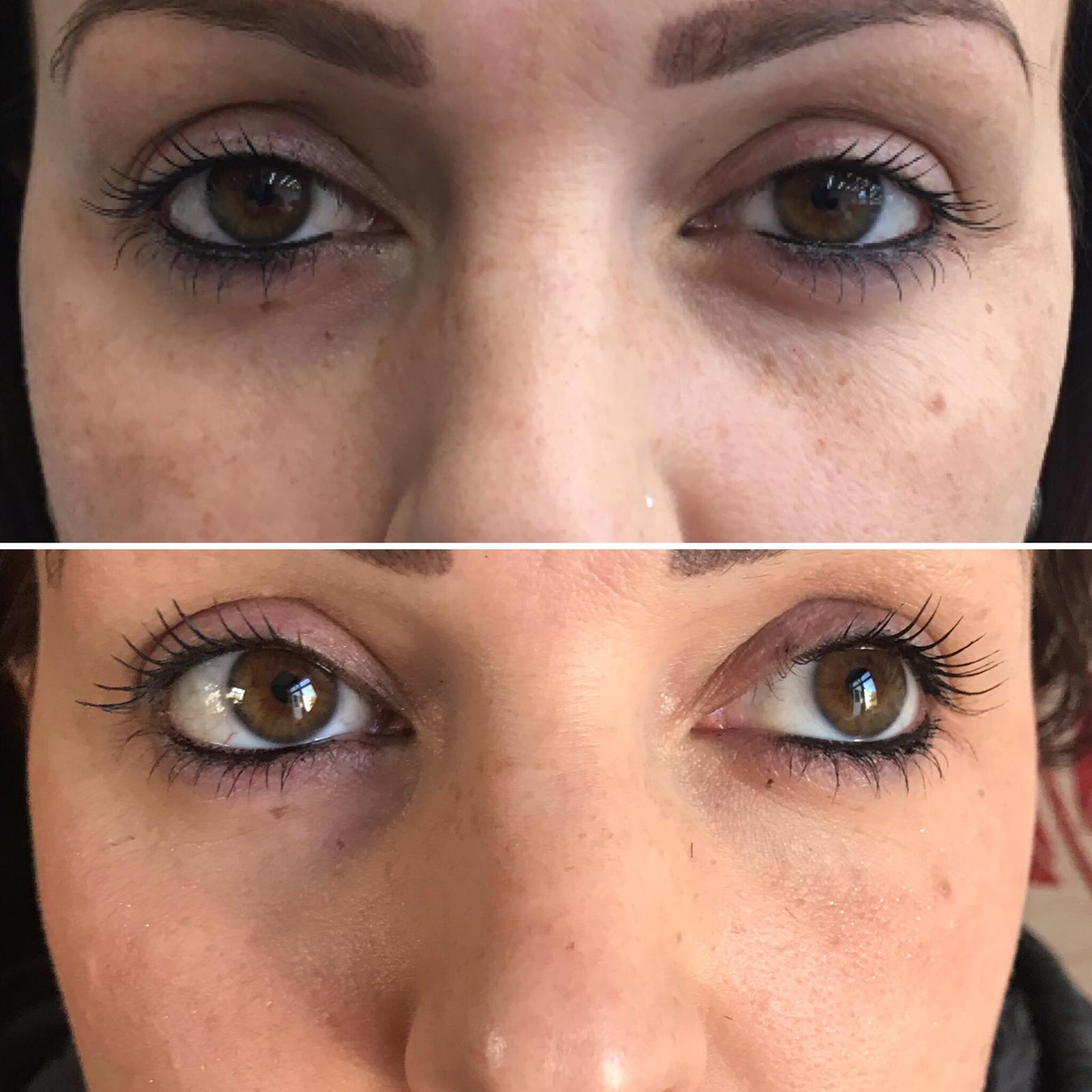 Sample treatment - non surgical platelet rich plasma before and after