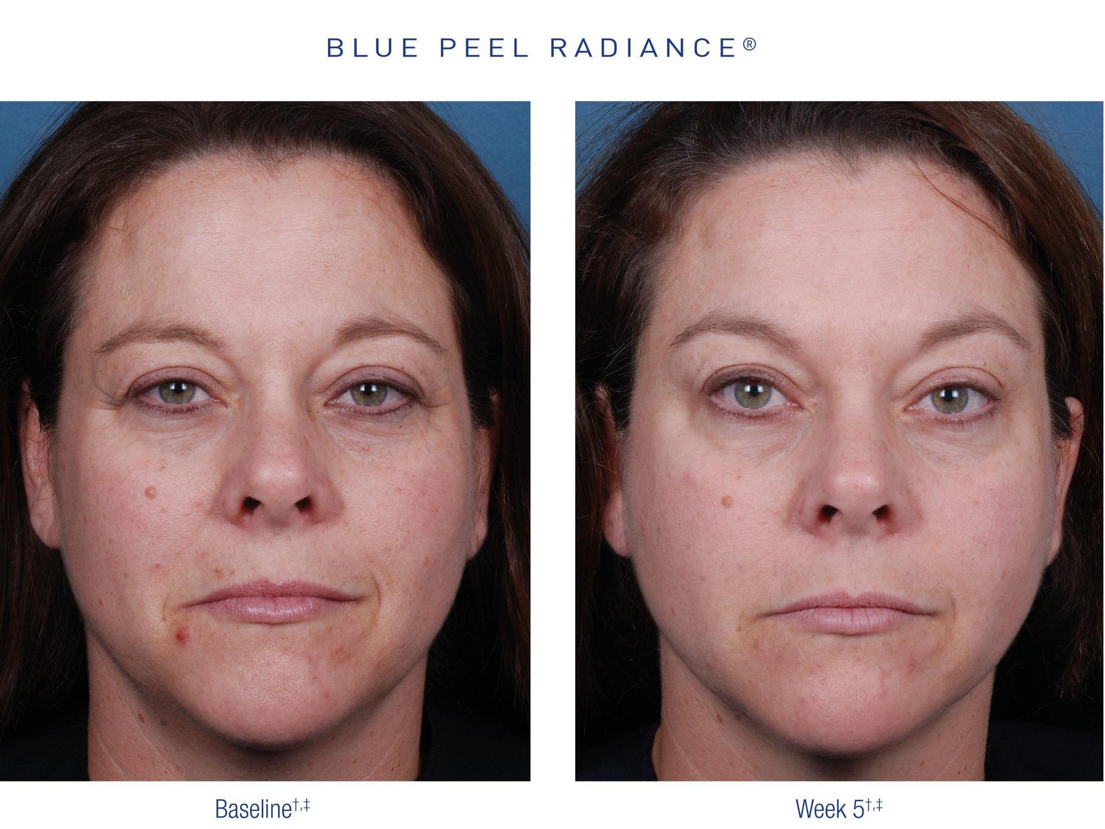 CHEMICALPEEL_BLUEPEEL_OBAGI_Before&After2.png.jpg