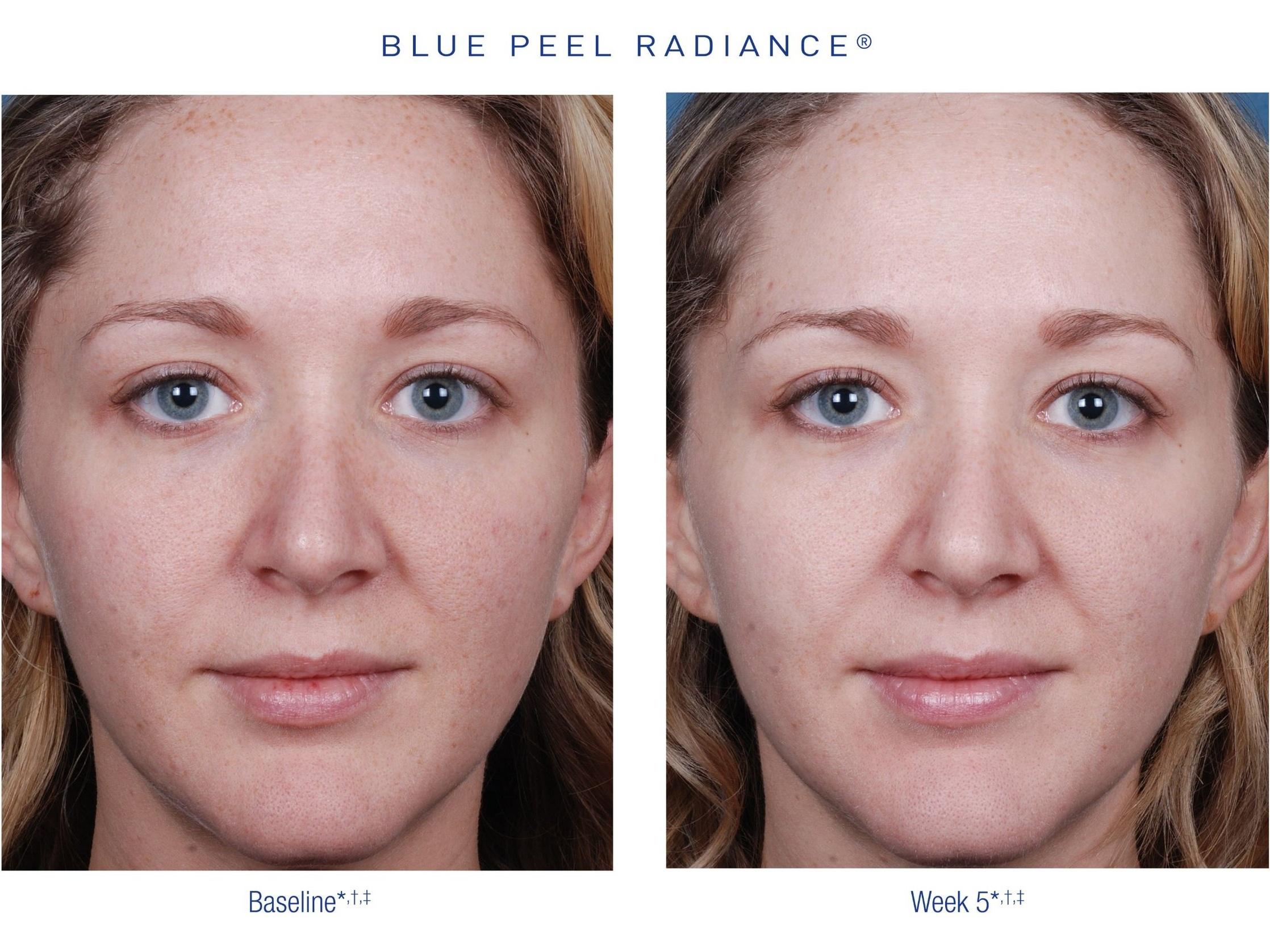 CHEMICALPEEL_BLUEPEEL_OBAGI_Before&After.jpg