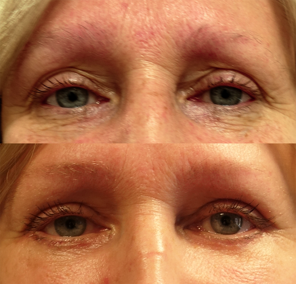 EYELIDSURGERY_Before&After.png