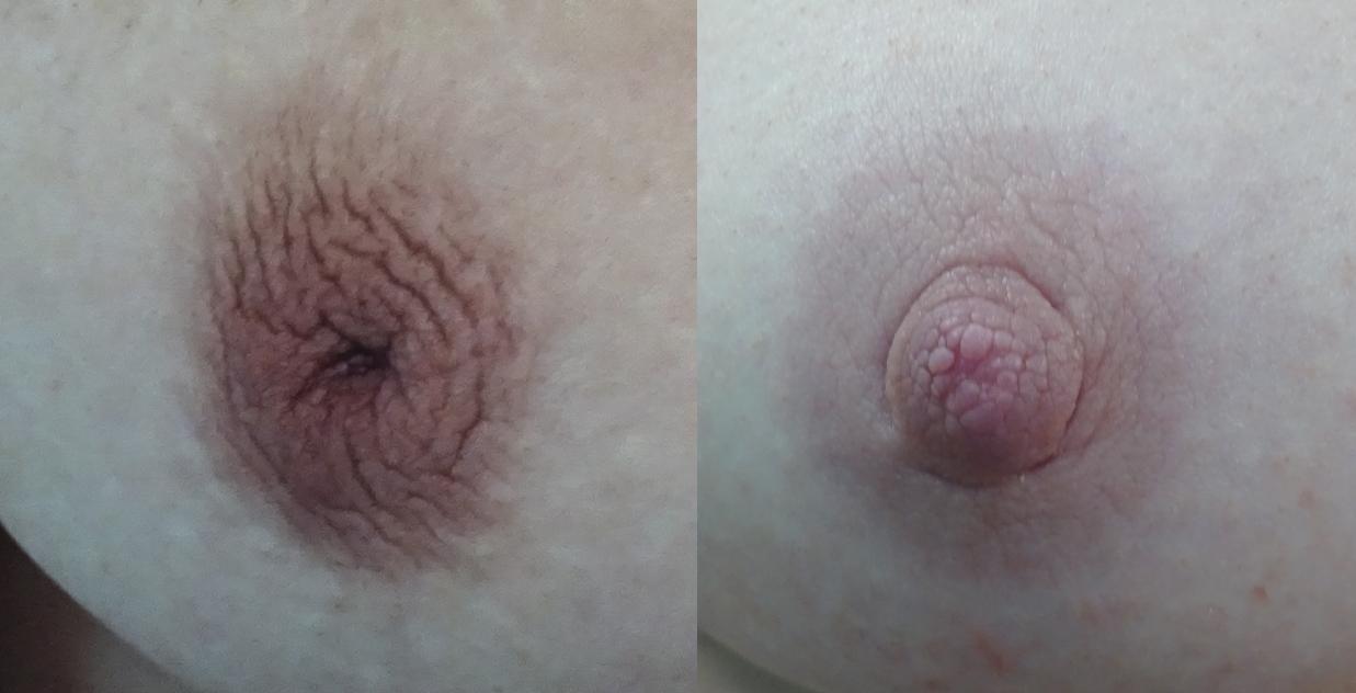 nipple B&A.jpg
