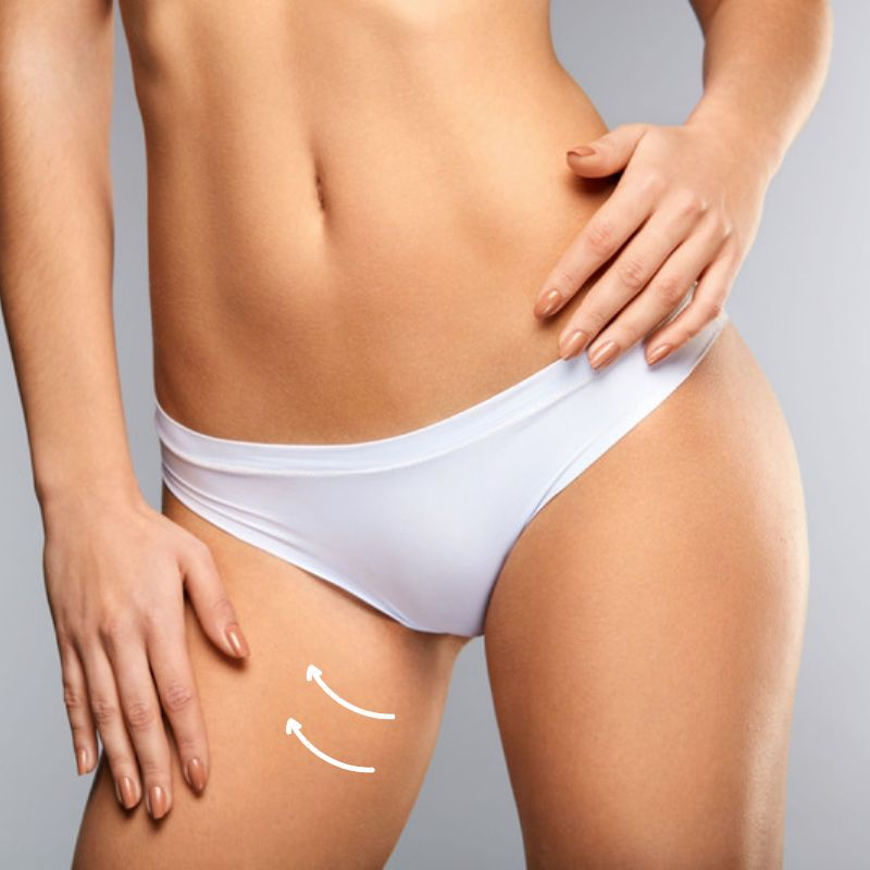 medial thigh lift - This procedure removes excess skin and fat from the inside of the thighs - a stubborn area that sometimes does not respond adequately to diet and exercise.