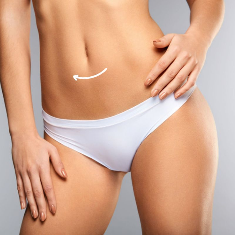 Mini-Tummy Tuck - A Mini-Abdominoplasty removes excess fat and skin from just the lower tummy and waist, giving an overall tighter and more toned looking tummy area.