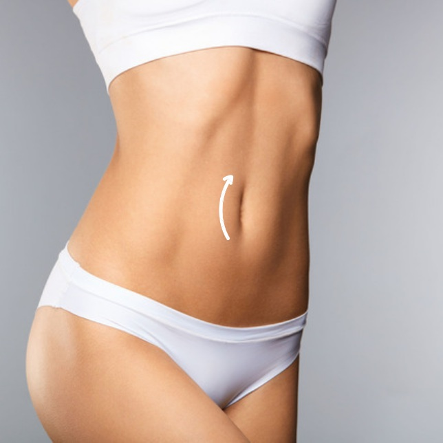 Fleur-de-lys TUMMY TUCK - For those with significant weight loss or multiple previous pregnancies, a Fleur-de-lys Abdominoplasty provides side-to-side tightening as well.