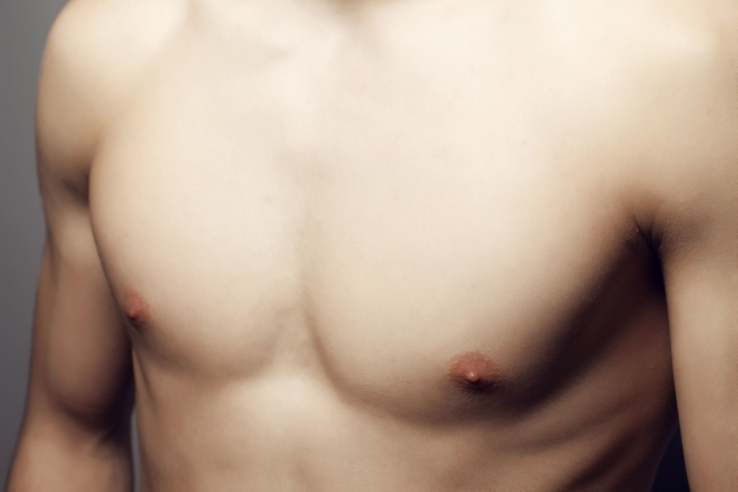 key treatment areas - Male Breast Reduction targets excess fat in the chest area that won't budge with exercise. It also targets Gynaecomastia, a common condition producing generalised enlargement of the male breast tissue.
