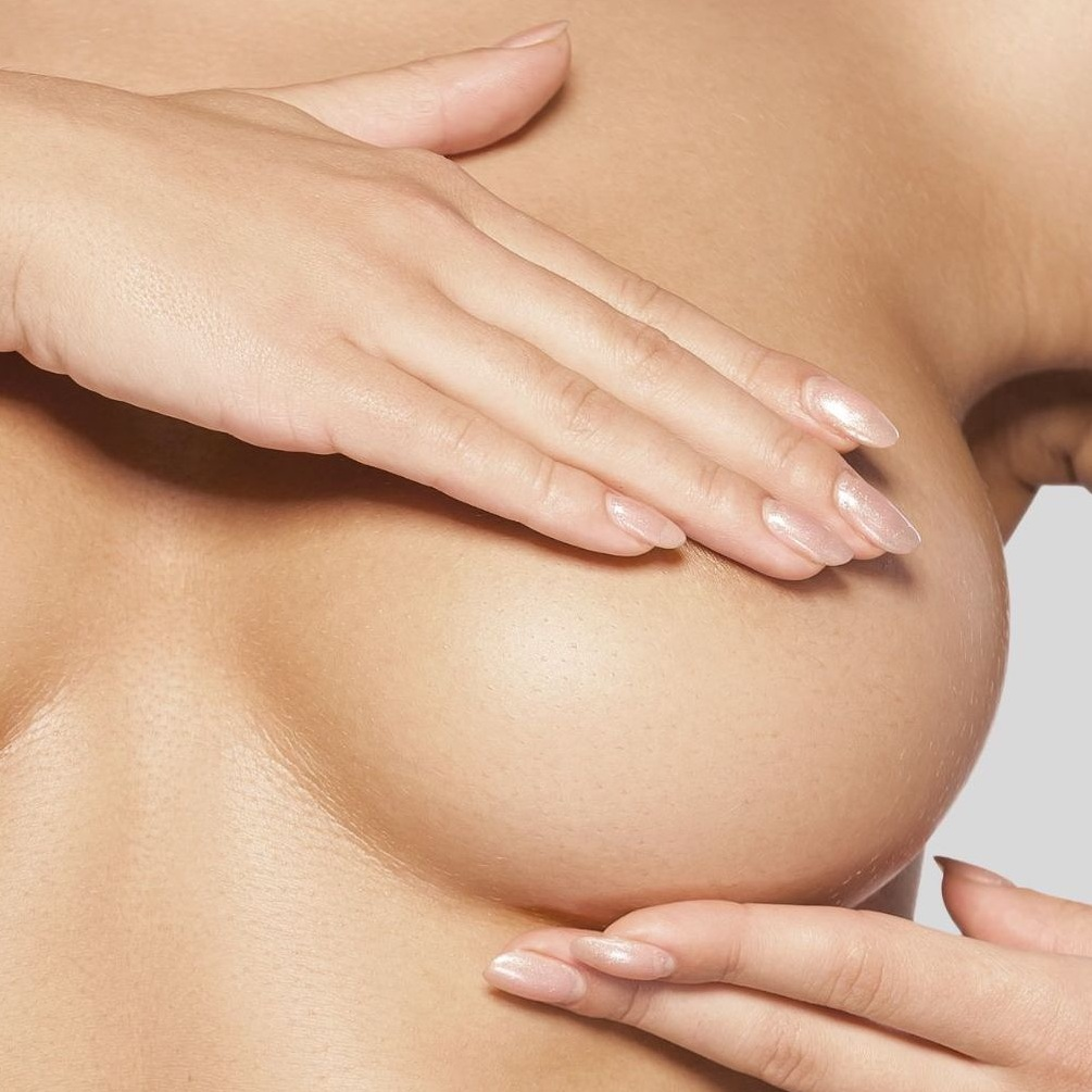 revision breast surgery - Revision breast surgery is often required 10-15 years after breast augmentation surgery to change or remove the implant, or conduct a breast lift.