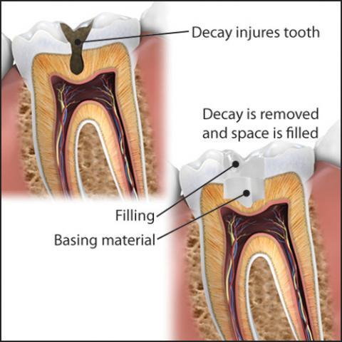 dental-fillings.jpg