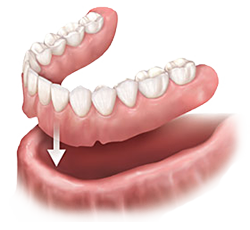 dentures_2_no_background_18.png