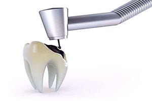 endodontics_1_14.jpg