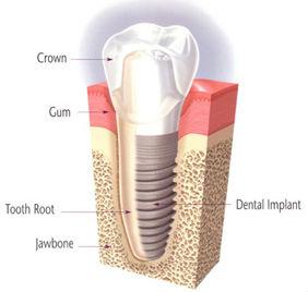cosmetic-dental-implant_16.jpg