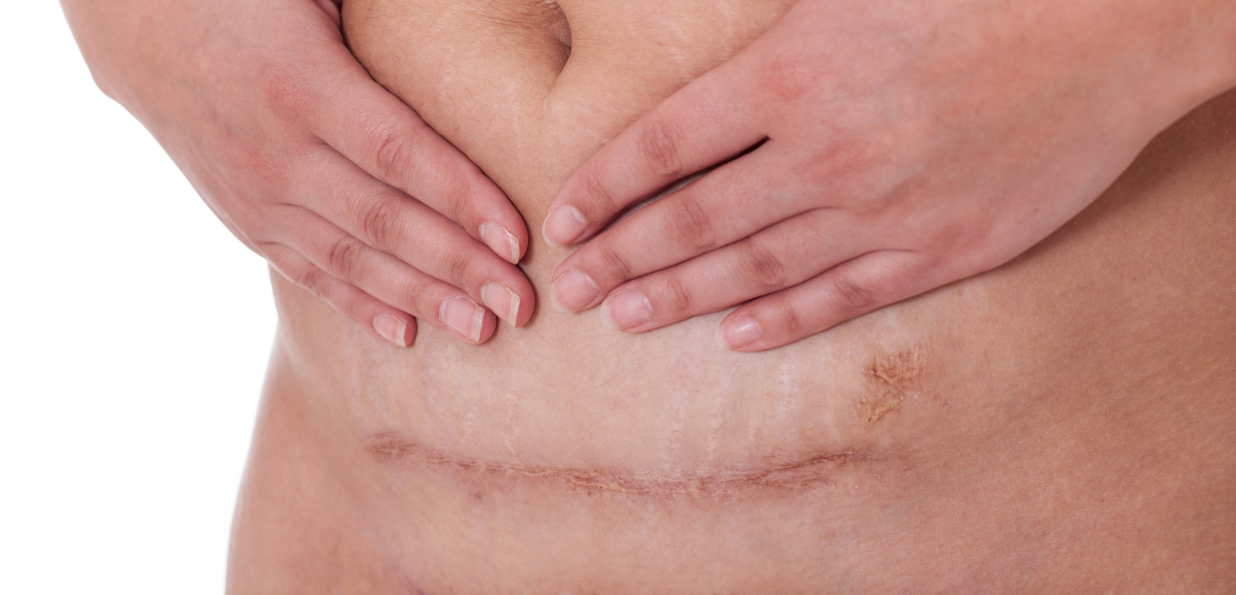 Surgical Scars -
