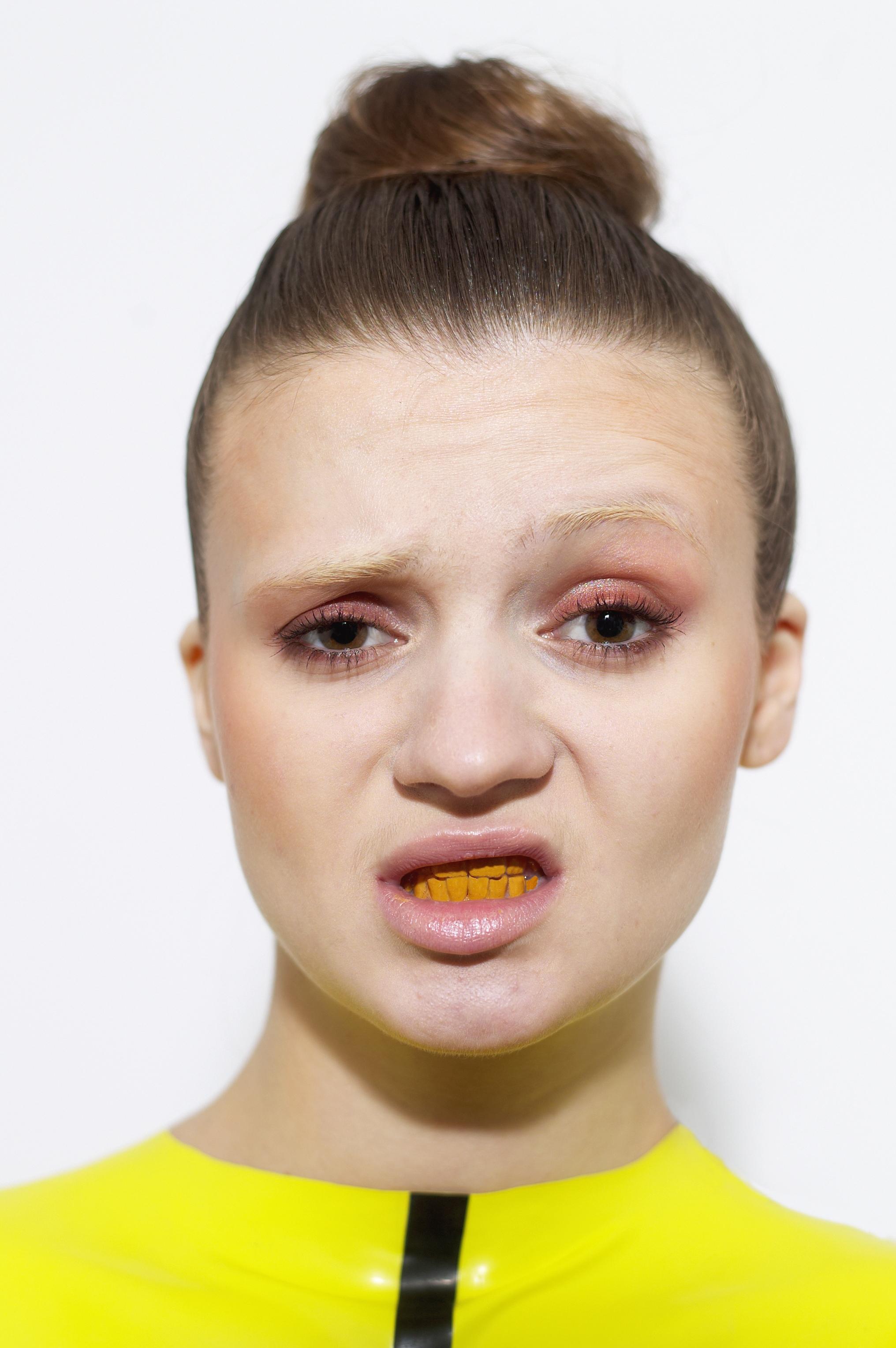 yellow teeth close-up 2 copy.jpg